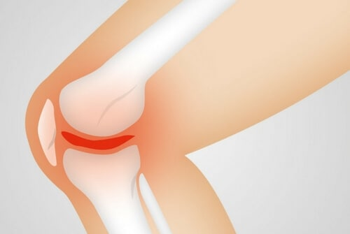 CT-Scan-Assisted-Injections-knee-osteoarthritis